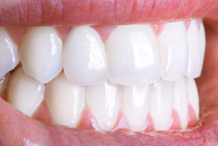 Tandblekning hemma vita tänder